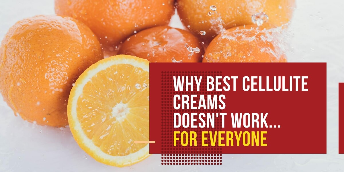 Why BEST CELLULITE CREAMS Doesn't Work…For Everyone article